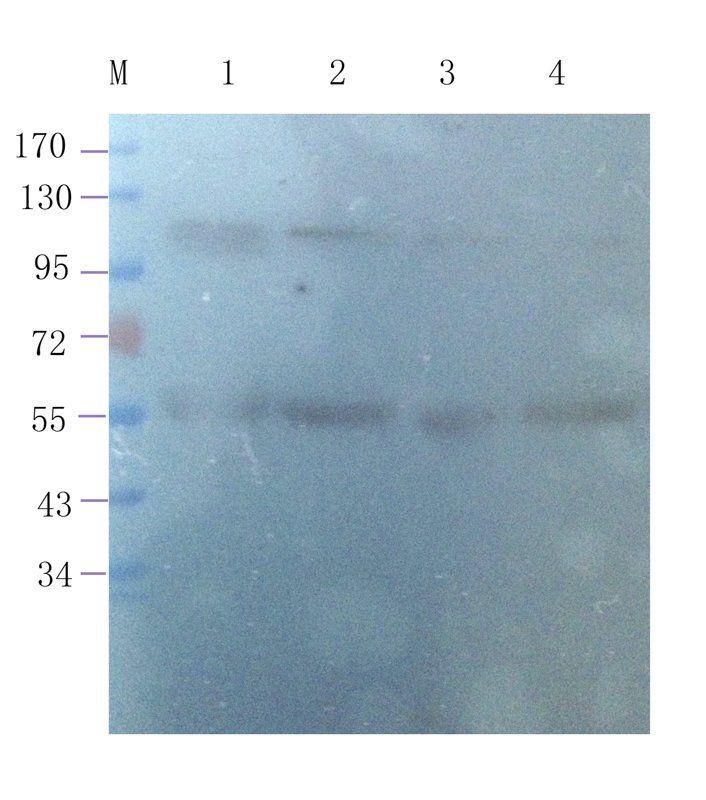 WB analysis of human breast cancer 24 (lane 1), human mammary fibroma 4 (lane 2), human mammary fibroma 5 (lane 3), human breast cancer 25 (lane 4) using Leptin Receptor (1 ug/ml)