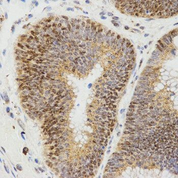 Immunohistochemistry analysis of paraffin-embedded human rectal cancer tissue using LHB antibody (dilution of 1:200)