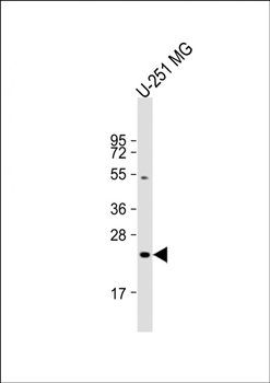 WB analysis of  U-251 MG whole cell lysate using LHPP antibody (dilution at 1:2000)