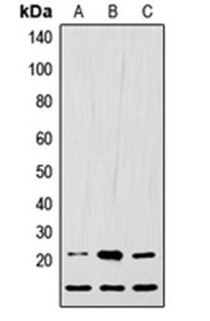 Western blot analysis of HEK293T (Lane1), Raw264.7 (Lane2), H9C2 (Lane3) whole cell using LIF antibody