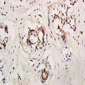 IHC-P of human breast carcinoma tissue (dilution at:1:200) using LIF Receptor antibody