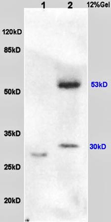 Western blot analysis of rat lung lysates(Lane1),human colon carcinoma lysates(Lane2) using PAR-1 antibody