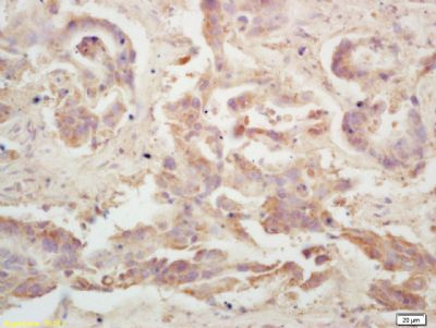 Immunohistochemical staining of human colon carcinoma tissue using LRP-MVP antibody.