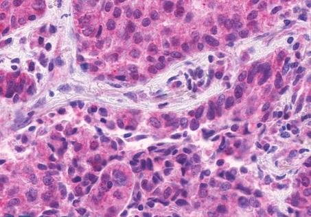 Immunohistochemical staining of Human lung using EMR1 antibody