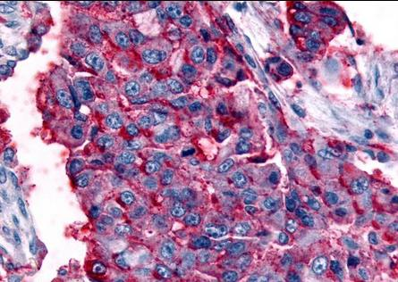 Immunohistochemical staining of human Lung using GPR63 antibody