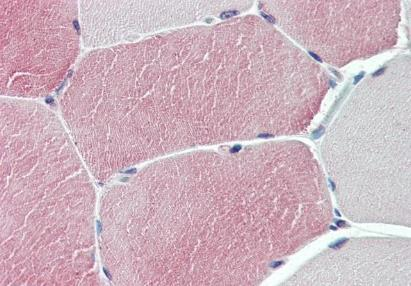 Immunohistochemical staining of human skeletal muscle using TXLNB antibody