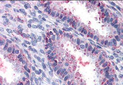 Immunohistochemical staining of human utrerus using ENTPD2 antibody