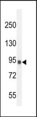 Western blot analysis of MDA-MB435 cell line lysates using IL12RB2 antibody