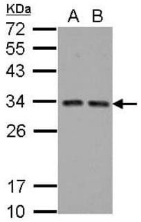 Western blot analysis of A431(Lane 1), HeLa(Lane 2) Cell lysate using HTATIP2 antibody