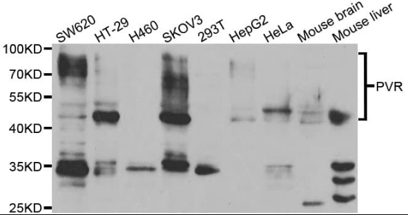 Western blot analysis of various cell lines using PVR antibody
