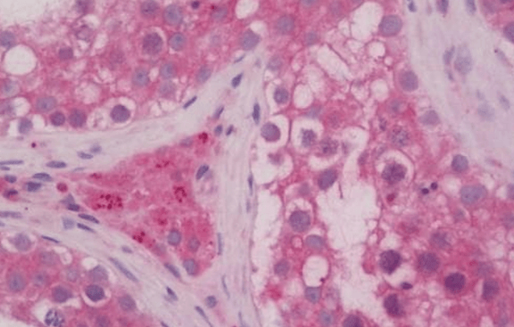 Immunohistochemical staining of  Human Testis using RAB5A antibody