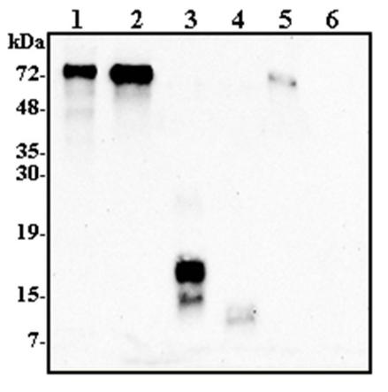 Western blot analysis of human Progranulin using GRN antibody