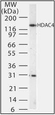 Western blot analysis of Jurkat cell lysate using HDAC4 antibody