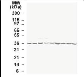 Western blot analysis of human tumor cell line lysate using GAPDH antibody
