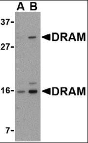 Western blot analysis of 293 cell lysate using DRAM antibody