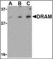 Western blot analysis of K562 cell lysate using DRAM antibody