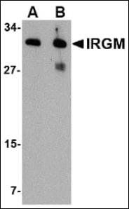 Western blot analysis of human brain lysate using IRGM antibody