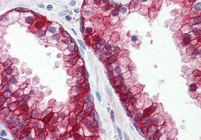 Immunohistochemical staining of Human prostate using Integrin Beta 1 antibody