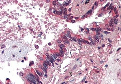 Immunohistochemical staining of Human lung using BMP4 antibody