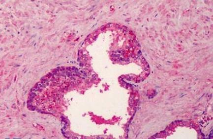 Immunohistochemical staining of Human prostate using BMP4 antibody