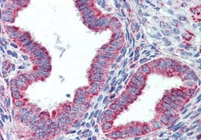 Immunohistochemical staining of Human uterus using GROEL antibody