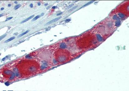 Immunohistochemical staining of Human small intestine using Amphiphysin antibody