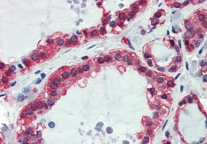 Immunohistochemical staining of human thyroid using GAPDH antibody