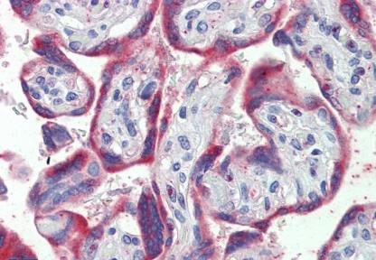 Immunohistochemical staining of human placenta using PDGF B antibody