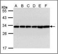 Western blot analysis of A431(Lane 1), H1299(Lane 2), Hela(Lane 3), Hep G2(Lane 4), Molt-4(Lane 5), Raji(Lane 6) using HS1 antibody