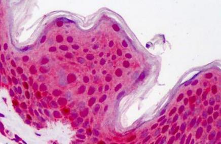 Immunohistochemical staining of human skin using HS1 antibody