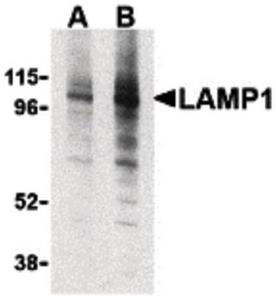 Western blot analysis of EL4 cell lysate using CD107a antibody