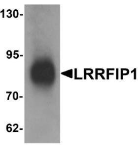Western blot analysis of human colon tissue lysate using TRIP antibody