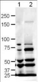 Western blot analysis of rat (lane 1) and mouse (lane 2) brain lysates using SLIT3 antibody