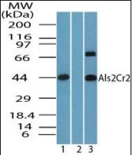 Western blot analysis of human brain lysate using STRADB antibody