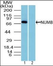 Western blot analysis of mouse brain lysate using NUMB antibody