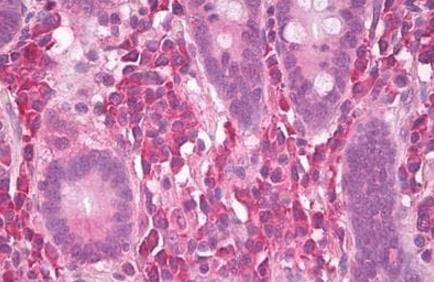 Immunohistochemical staining of human small intestine using MNK antibody