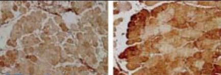 Immunohistochemistry staining of using MNSOD antibody