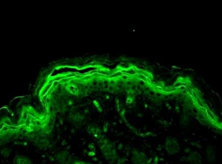 Immunofluorescence analysis of Mouse back skin using ERK1 antibody