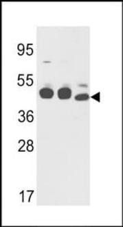 Western blot analysis of K562,NCI-H460 cell line lysates and mouse stomach tissues lysates using Cytokeratin 18 antibody