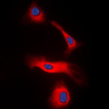 Immunofluorescense analysis of HeLa cells lysates using LT beta antibody