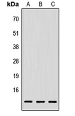 Western blot analysis of HEK293T (Lane1), Raw264.7 (Lane2), H9C2 (Lane3) whole cell using LY6E antibody