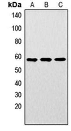 Western blot analysis of MCF7 (Lane1), mouse brain (Lane2), rat brain (Lane3) whole cell using LYN (phospho-Y192) antibody