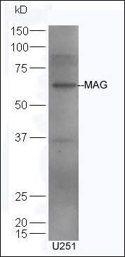 Western blot analysis of U251 cell using Mag-A-B antibody.