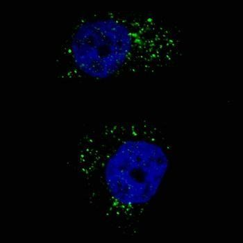 Immunofluorescense analysis of U251 cells using MAP1LC3A antibody (primary antibody dilution at: 1:200)