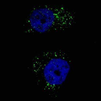 Immunofluorescense analysis of U251 cells using MAP1LC3A antibody (primary antibody dilution at: 1:200)