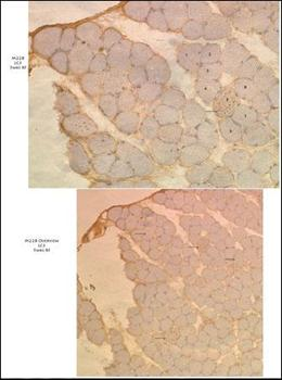 Immunohistochemical staining of paraffin embedded human muscle tissue using MAP1LC3A antibody (primary antibody dilution at: 1:50-100)