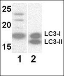 Western blot analysis of Y79 (Lane 1), 293 transfected whole cell lysates (Lane 2)using MAP1LC3A antibody (antibody dilution at 1:1000)