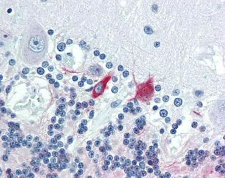 Immunohistochemical staining of paraffin embedded human brain tissue using MAP2 antibody (primary antibody at 1:200)
