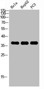 Western blot analysis of HELA HEPG2 PC-3 using MAPK14 antibody