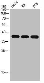 Western blot analysis of HELA KB PC-3 using MAPK14 antibody